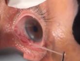 فيديو.. استخراج دودة طفيلية بطول 15 سم من عين رجل