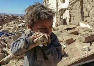 نيويورك تايمز: 400 ألف طفل يمني مهددون بالموت جوعاً
